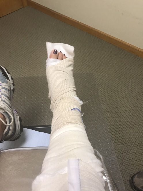 Fractured foot